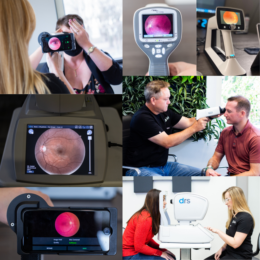 Collage of different Retinal Camera options