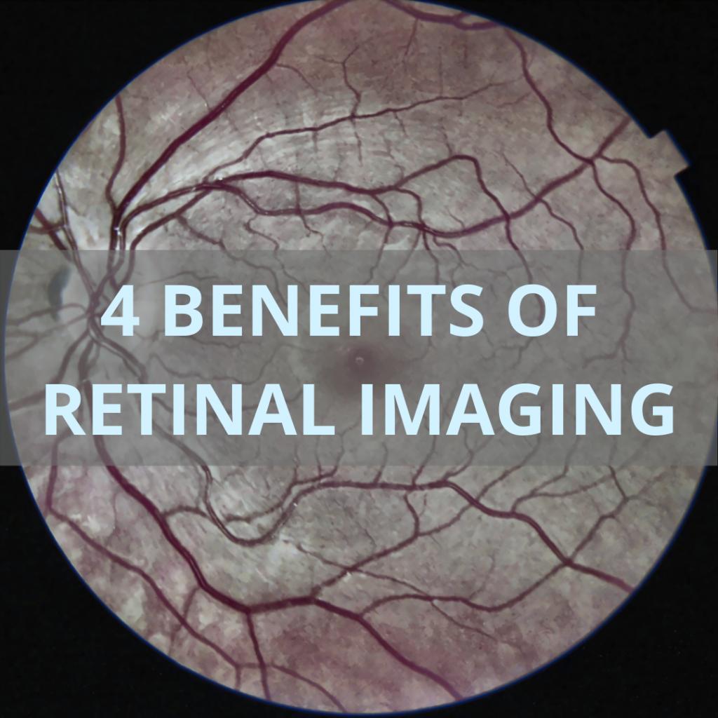 Retinal Image subjected to IRIS Image Enhancement Software